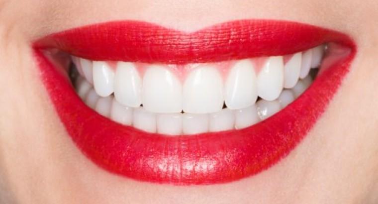 виниры на зубы цена в брянске